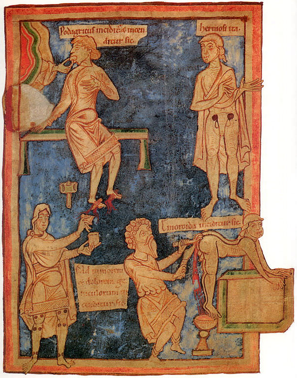 11th century English miniature. On the right is an operation to remove hemorrhoids. On the left a patient with gout is treated with cutting and burning of the feet
