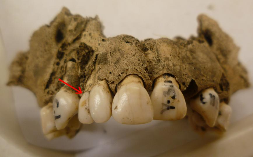 medieval teeth