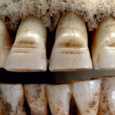 How some Vikings had their teeth filed - a painful way to have a new smile!