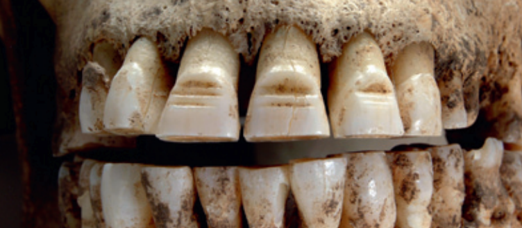 The Vikings and their Filed Teeth