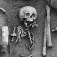 Researchers in France have discovered the remains of a child from the 5th or 6th century AD that had Down Syndrome. It is the earliest case to have been found so far.