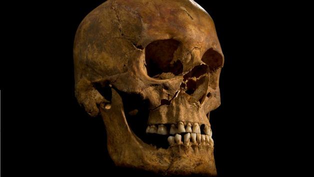 Richard III skull