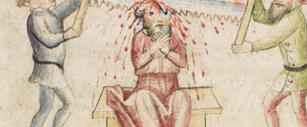 It's even more painful than it looks! This and forty more medieval manuscript images from the last week.