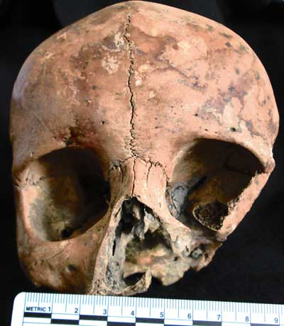 Skull 9(a) from No. 16., Eustace Street, Dublin, a young adult female who also displays evidence of cut marks to the face, indicative of the nose being cut off (Image reproduced courtesy of the National Museum of Ireland)