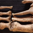 The bones of the man, probably in his 20s, show changes consistent with leprosy, such as narrowing of the toe bones and damage to the joints, suggesting a very early British case.