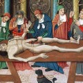 Top 10 Medical Advances from the Middle Ages